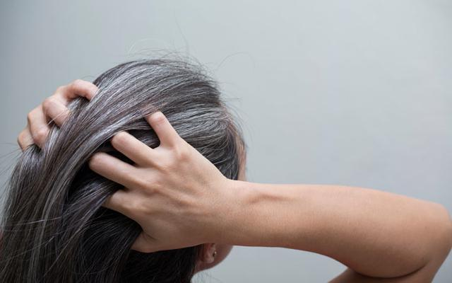 Ways To Prevent The Spread Of White Hair